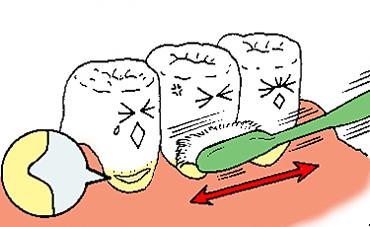 歯ブラシの正しい使い方1