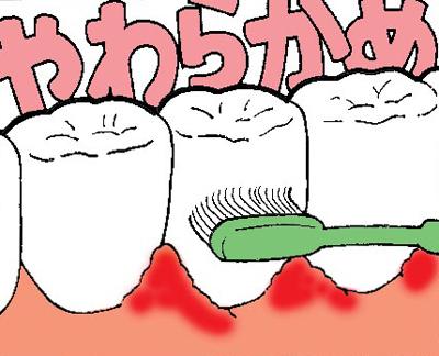 歯ブラシの毛の硬さの選び方やわらかめ