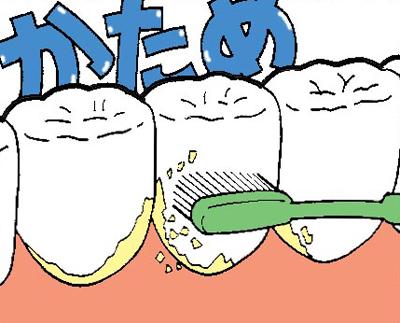 歯ブラシの毛の硬さの選び方硬め