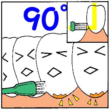正しい歯磨き方法1