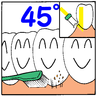正しい歯磨き方法2